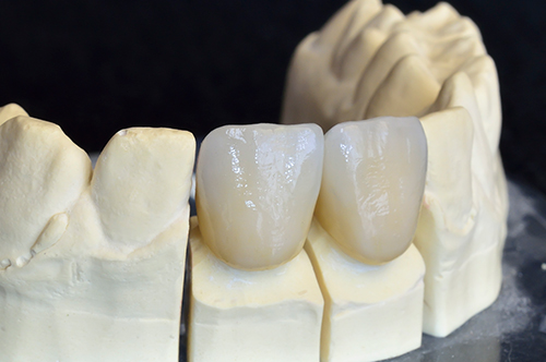 Dental Crowns in Fishers