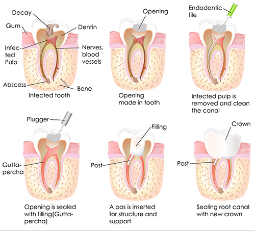 Fishers Root Canal Therapy